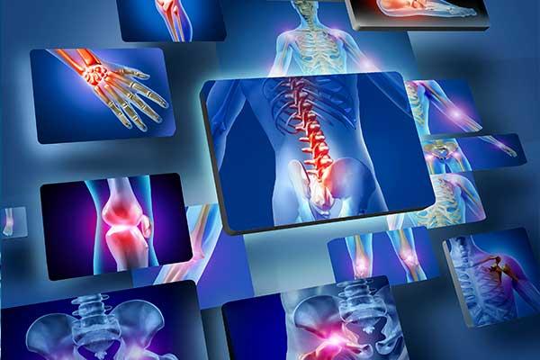 terapia antalgica del dolore